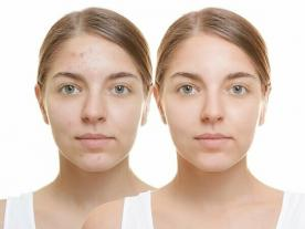 Info, prices & total cost   Laser Treatment for Acne