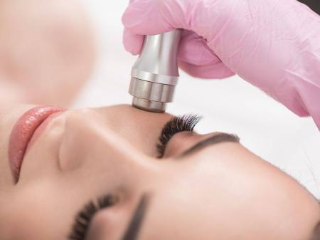 Info, prices & total cost   Dermabrasion