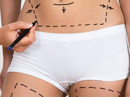 Info, prices & total cost   Liposuction
