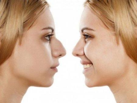 Info, prices & total cost   Rhinoplasty