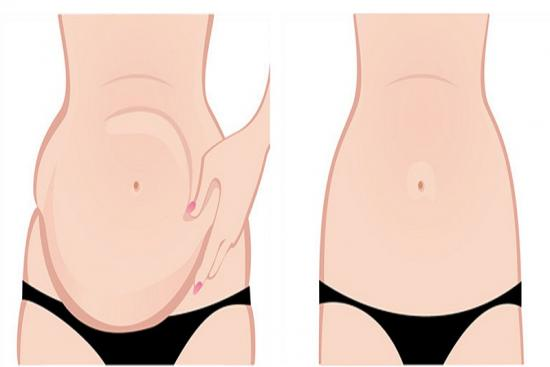Abdominoplasty (Tummy Tuck) 0 Turkey