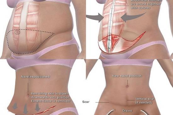 Abdominoplasty (Tummy Tuck) 1 Turkey