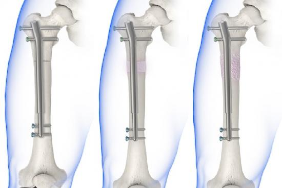 limb lengthening, leg surgery, turkey, istanbul, price, doctor, clinic