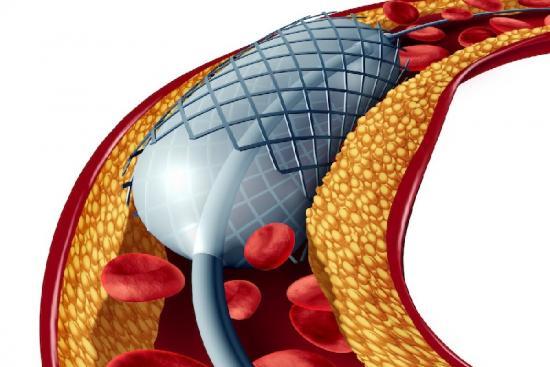 Коронарная ангиопластика 1 Турция