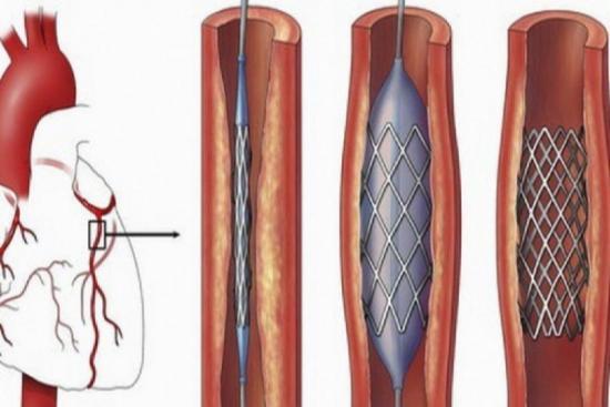 Коронарная ангиопластика 3 индейка