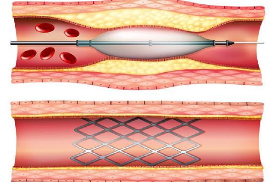 Коронарная ангиопластика 2 индейка