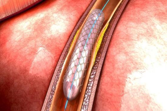 Коронарная ангиопластика 0 индейка