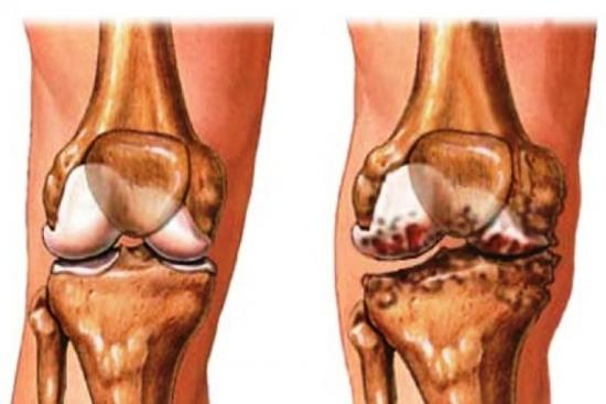 osteoarthritis treatment in turkey,treatment,osteoarthritis of knee,knee,doctor,surgeon,hospital,clinic,turkey,istanbul,cost
