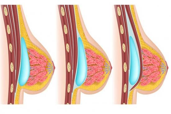 augmentation mammoplasty, surgery, breast implants, doctor, turkey, clinic, cost