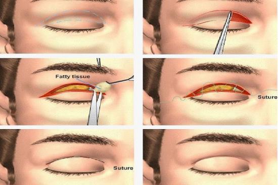 Unilateral blepharoplasty 1 Turkey