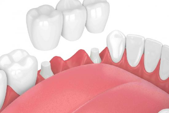 Dental Bridge 0 Turkey