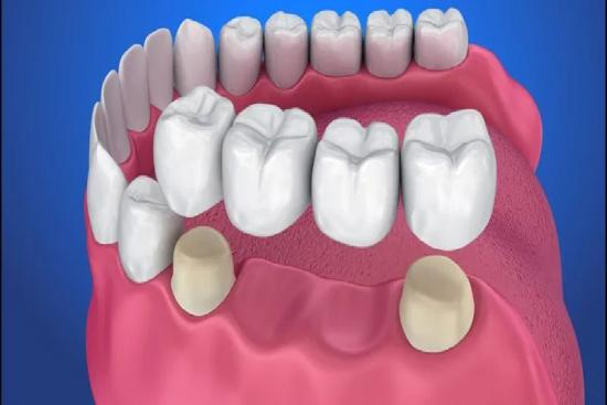 Dental Bridge 1 Turkey