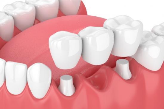 Dental Bridge 2 Turkey