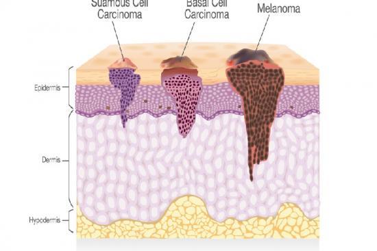 Skin Cancer 0 Turkey