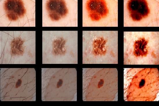 Cancer de la peau 3 Turquie