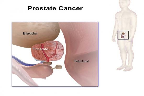 Prostate cancer 3 Turkey