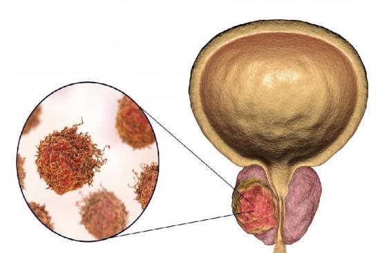سرطان البروستات 1 تركيا