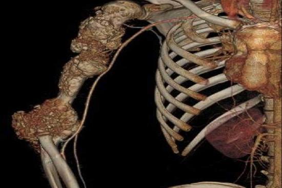 Рак кости 1 индейка