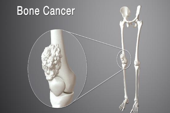 Рак кости 0 индейка