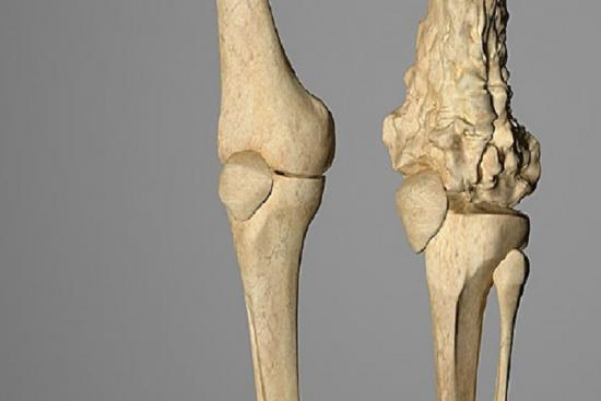 Рак кости 3 индейка