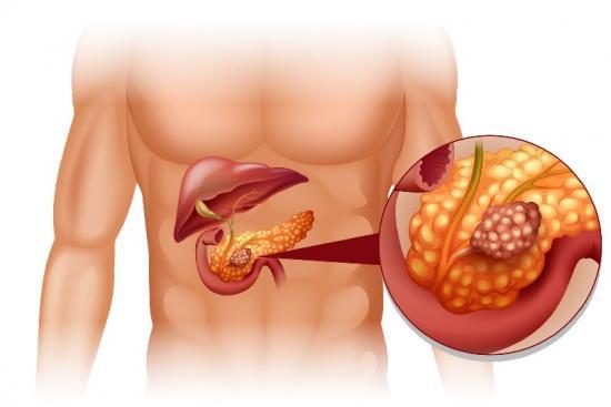 Рак поджелудочной железы 0 Турция