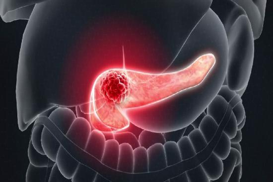 Рак поджелудочной железы 3 Турция