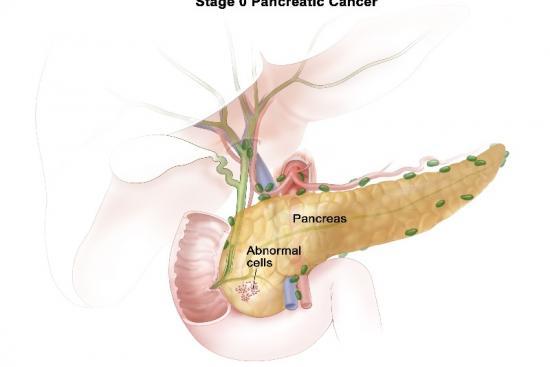 Рак поджелудочной железы 2 Турция