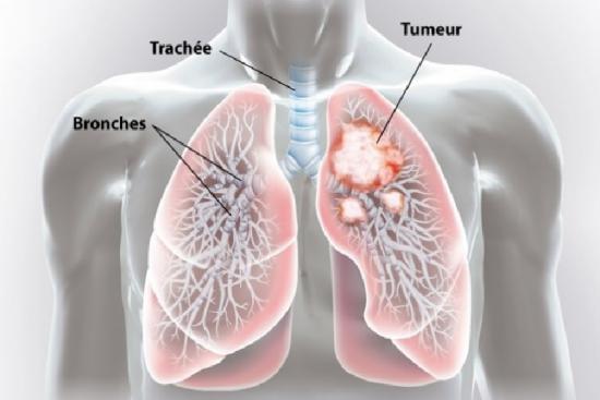 Cancer du poumon 3 Turquie