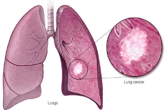 Рак легких 4 индейка