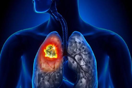 Cancer du poumon 0 Turquie
