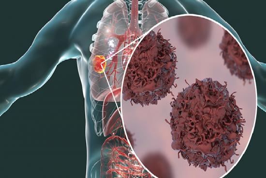Cancer du poumon 1 Turquie