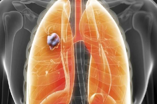 Рак легких 2 индейка