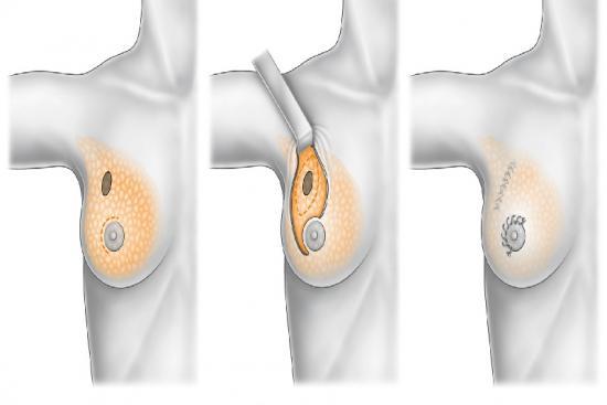 Рак молочной железы 1 индейка