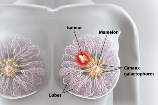 Рак молочной железы 2 индейка