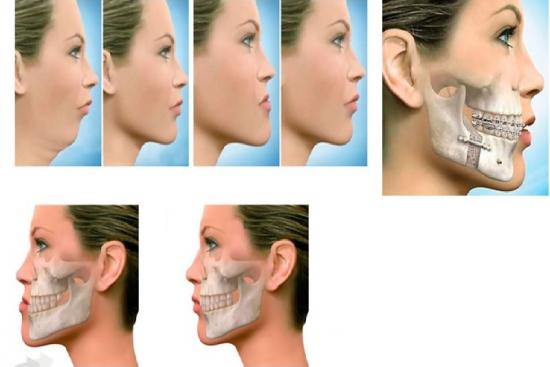Orthognathic surgery, corrective, dentist, cost, jaw surgery price, doctor, turkey, istanbul, hospital, clinic, recovery