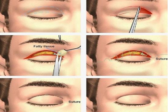 Eyelid surgery 1 Turkey