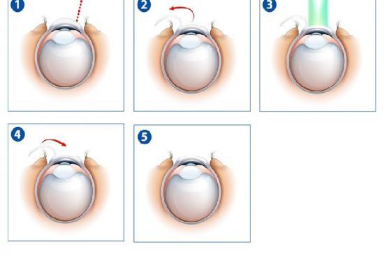 جراحة العيون بالليزر 1 تركيا