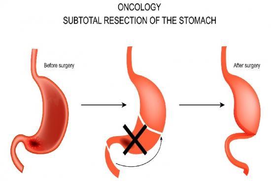 Cancer de l'estomac 3 Turquie