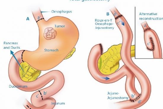 Cancer de l'estomac 2 Turquie
