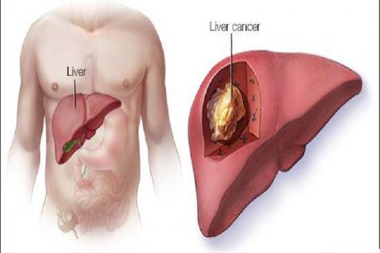 Liver cancer surgery 2 Turkey