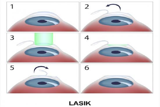Lasik eye surgery 0 Turkey