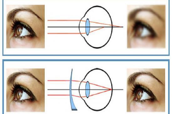 Correction de l'astigmatisme 2 Turquie