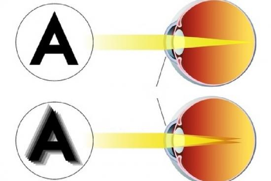 Correction de l'astigmatisme 3 Turquie