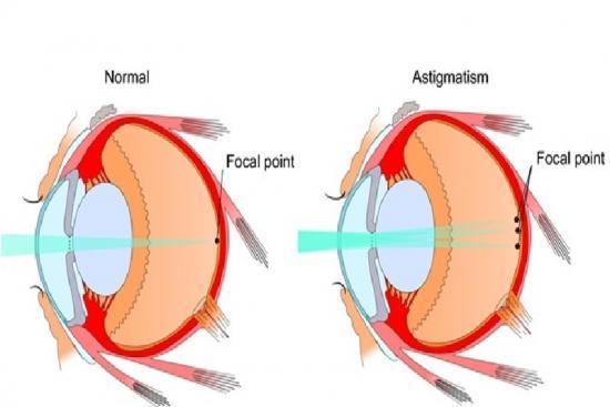 Correction de l'astigmatisme 4 Turquie