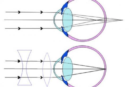 Correction de l'astigmatisme 1 Turquie