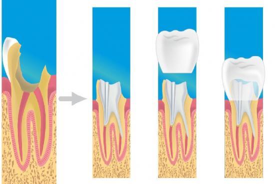 Зубные коронки 2 индейка