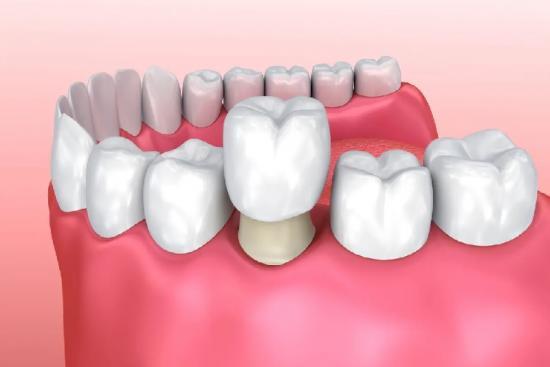 Зубные коронки 0 индейка