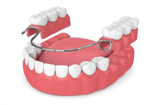 Partial,Implants,Prices,Clinic,dentures,Cost,Partial denture cost,Partial dentures in turkey,Dental Implants in turkey, Dental Implants cost