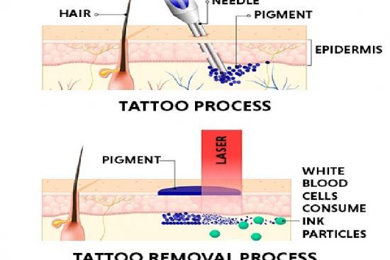 Laser tattoo removal 0 Turkey