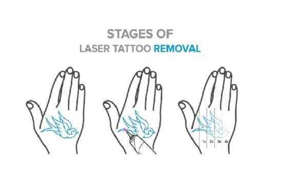 Laser tattoo removal 1 Turkey